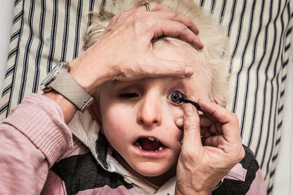 handikappet-gutt (1)