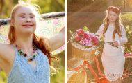 Maddy har Downs syndrom og har blitt modell. Nå inspirerer hun mennesker verden over.