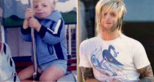 Han ble forlatt som baby på grunn av sitt utseende. Nå røres millioner av hans ønske om å forbedre verden.