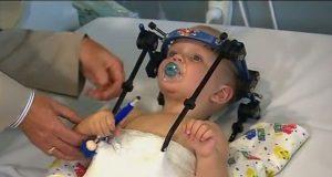 Gutten fikk hodet «revet av» innvendig. Nå hylles mirakeloperasjonen som reddet babyens liv.