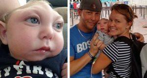 Legene sa han IKKE ville overleve, men denne deformerte babyen viste dem.