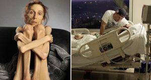 Hun veide 18 kg da hun omsider fikk hjelp med anoreksia. Forvandlingen 7 mnd. senere? Fantastisk.