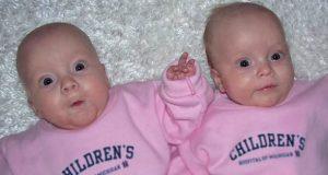 Mor føder to tvillingjenter. To måneder senere oppdager legen noe sjokkerende på magene deres.