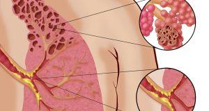 Studie viser sammenheng mellom e-sigaretter og den uhelbredelige sykdommen «popcornlunger».