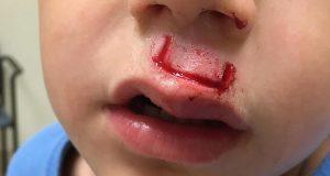 Det populære leketøyet eksploderte i sønnens ansikt. Nå advarer pappaen andre.