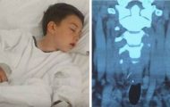 Etter grillmåltid fikk gutten store smerter i halsen. På legevakta oppdaget de noe skremmende.