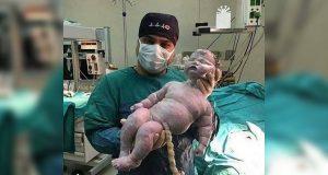 Kjempebabyen veide 8 kilo og har tatt nettet med storm. Fødtes på naturlig vis.