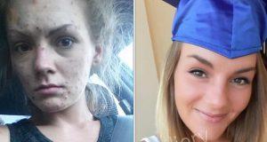 Eks meth-avhengig jente poster før og etter-bilder etter å ha fått sitt vitnemål. Nå hyller vi henne.