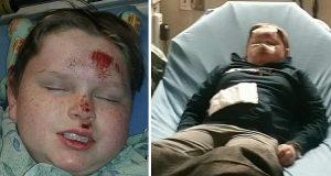 Gutt slått bevisstløs i lek – nå advarer mor om den livsfarlige trenden blant ungdommer.