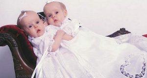 Siamesiske tvillinger ble verdensberømte i 2002. 11 år senere sjokkeres verden av de nye bildene.