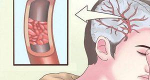 13 tegn på at kroppen din umiddelbart trenger mer magnesium